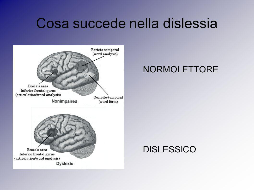 Cosa succede nella dislessia NORMOLETTORE DISLESSICO
