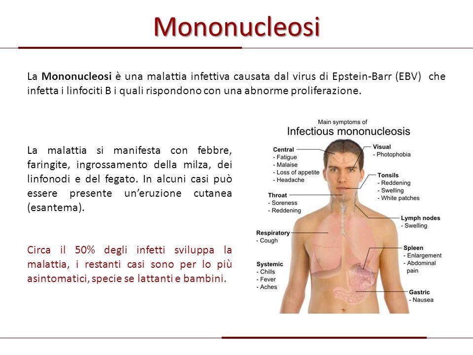 Mononucleosi La Mononucleosi è una malattia infettiva causata dal virus di Epstein-Barr (EBV) che infetta i linfociti B i quali rispondono con una abn