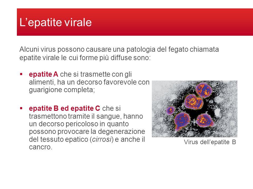 L'epatite virale  epatite A che si trasmette con gli alimenti, ha un decorso favorevole con guarigione completa;  epatite B ed epatite C che si trasmettono tramite il sangue, hanno un decorso pericoloso in quanto possono provocare la degenerazione del tessuto epatico (cirrosi) e anche il cancro.
