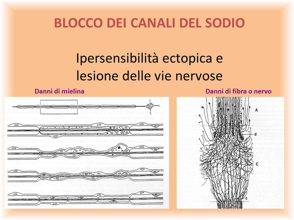 BLOCCO DEI CANALI DEL SODIO Ipersensibilità ectopica e lesione delle vie nervose Danni di mielinaDanni di fibra o nervo
