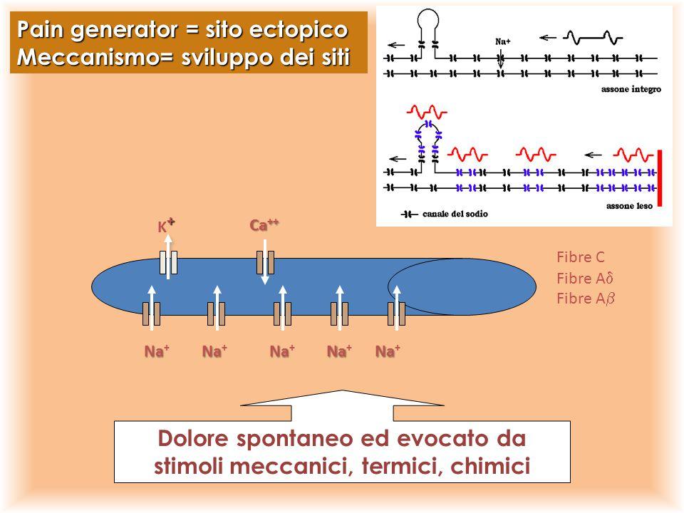 +K++K+ Na Na + Ca ++ Pain generator = sito ectopico Meccanismo= sviluppo dei siti Dolore spontaneo ed evocato da stimoli meccanici, termici, chimici F