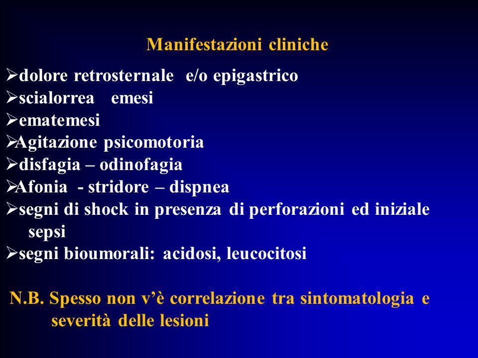 Manifestazioni cliniche  dolore retrosternale e/o epigastrico  scialorrea emesi  ematemesi  Agitazione psicomotoria  disfagia – odinofagia  Afon