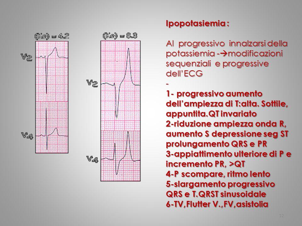 12 Ipopotasiemia : Al progressivo innalzarsi della potassiemia -  modificazioni sequenziali e progressive dell'ECG - 1- progressivo aumento dell'ampi