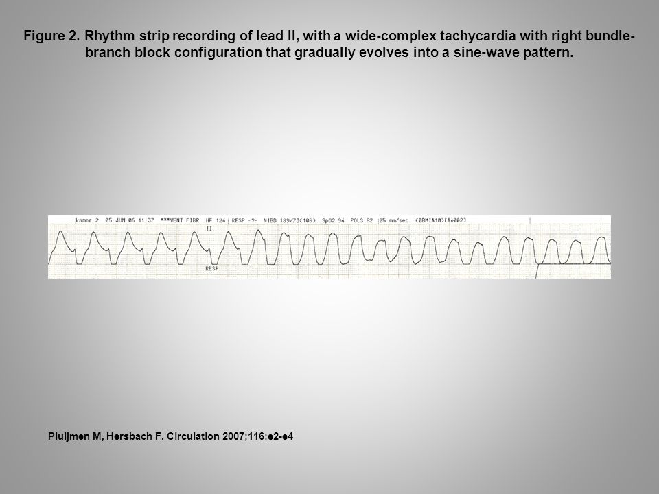 Figure 2. Rhythm strip recording of lead II, with a wide-complex tachycardia with right bundle- branch block configuration that gradually evolves into