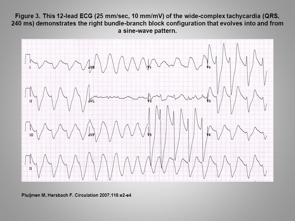 Figure 3. This 12-lead ECG (25 mm/sec, 10 mm/mV) of the wide-complex tachycardia (QRS, 240 ms) demonstrates the right bundle-branch block configuratio