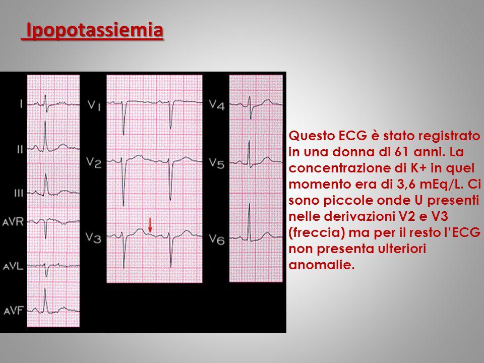 Questo ECG è stato registrato in una donna di 61 anni. La concentrazione di K+ in quel momento era di 3,6 mEq/L. Ci sono piccole onde U presenti nelle