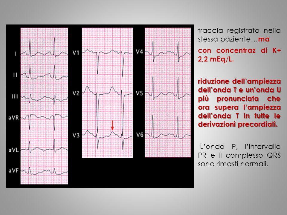 traccia registrata nella stessa paziente… ma con concentraz di K+ 2,2 mEq/L. riduzione dell'ampiezza dell'onda T e un'onda U più pronunciata che ora s