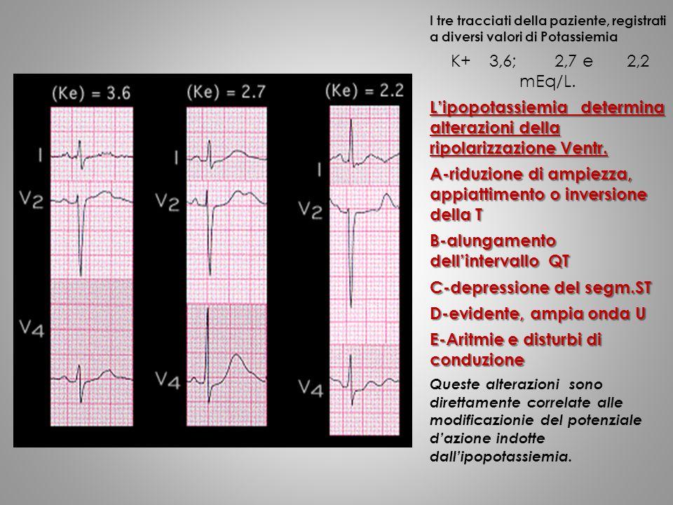 I tre tracciati della paziente, registrati a diversi valori di Potassiemia K+ 3,6; 2,7 e 2,2 mEq/L. L'ipopotassiemia determina alterazioni della ripol