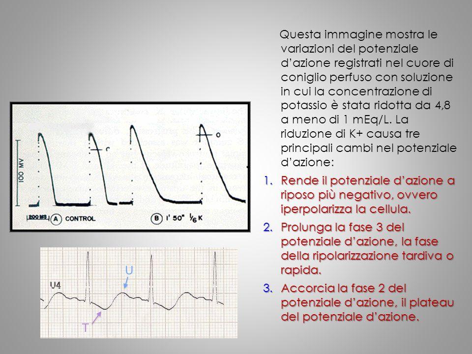 Questa immagine mostra le variazioni del potenziale d'azione registrati nel cuore di coniglio perfuso con soluzione in cui la concentrazione di potass