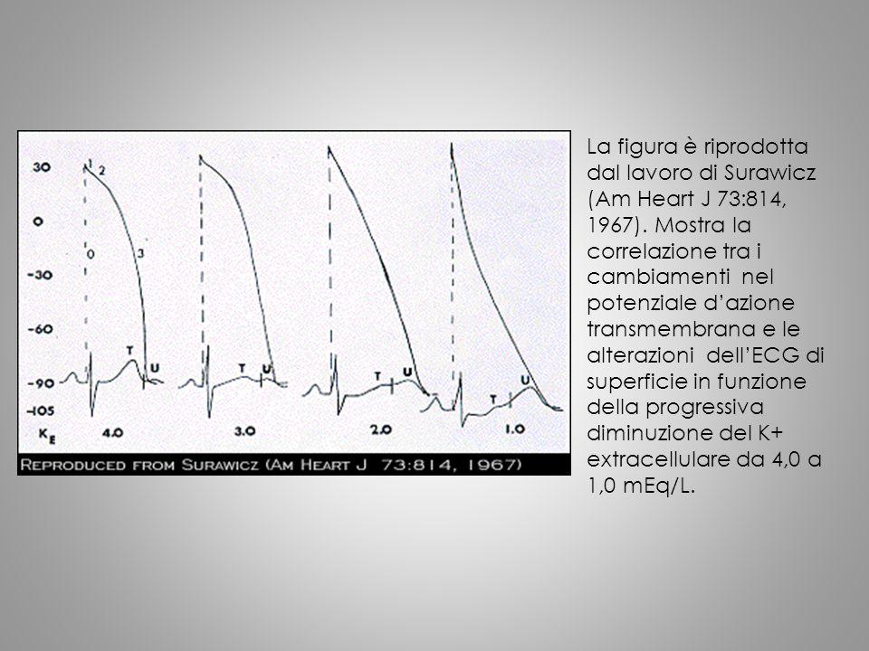 La figura è riprodotta dal lavoro di Surawicz (Am Heart J 73:814, 1967). Mostra la correlazione tra i cambiamenti nel potenziale d'azione transmembran