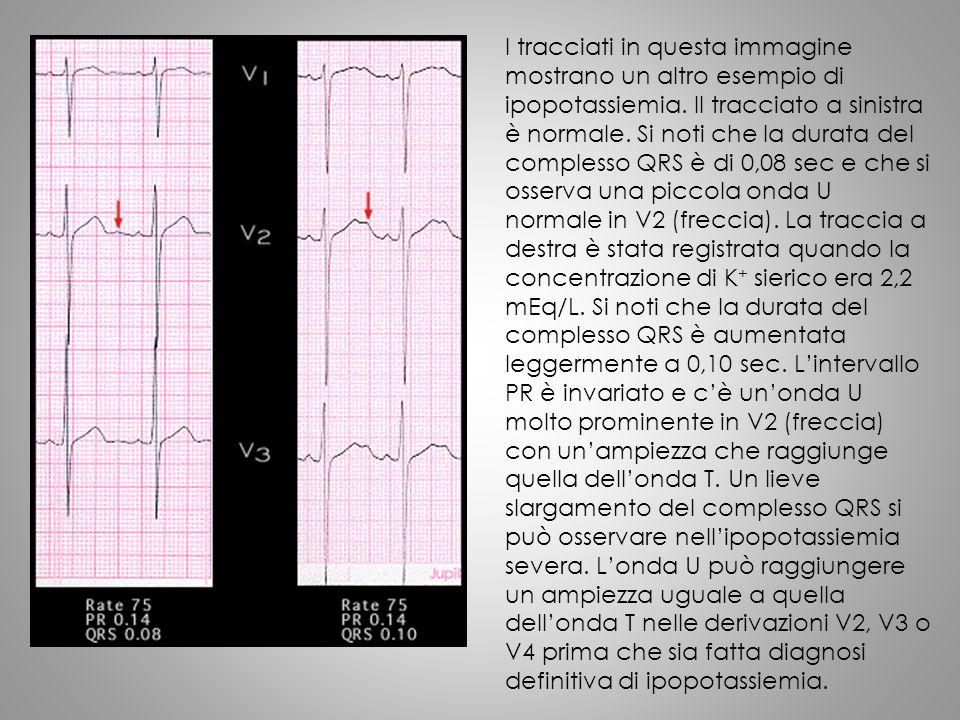 I tracciati in questa immagine mostrano un altro esempio di ipopotassiemia. Il tracciato a sinistra è normale. Si noti che la durata del complesso QRS