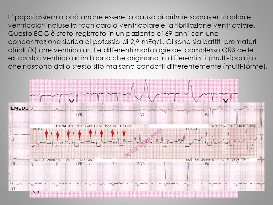 L'ipopotassiemia può anche essere la causa di aritmie sopraventricolari e ventricolari incluse la tachicardia ventricolare e la fibrillazione ventrico