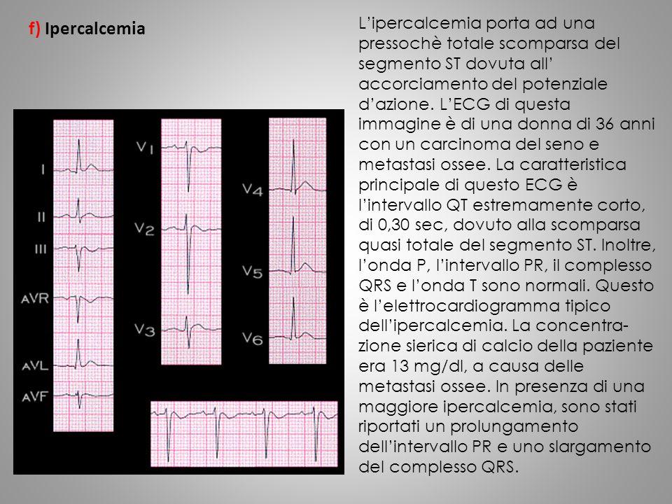 L'ipercalcemia porta ad una pressochè totale scomparsa del segmento ST dovuta all' accorciamento del potenziale d'azione. L'ECG di questa immagine è d