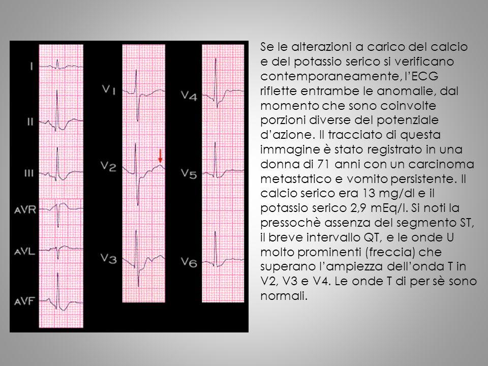 Se le alterazioni a carico del calcio e del potassio serico si verificano contemporaneamente, l'ECG riflette entrambe le anomalie, dal momento che son