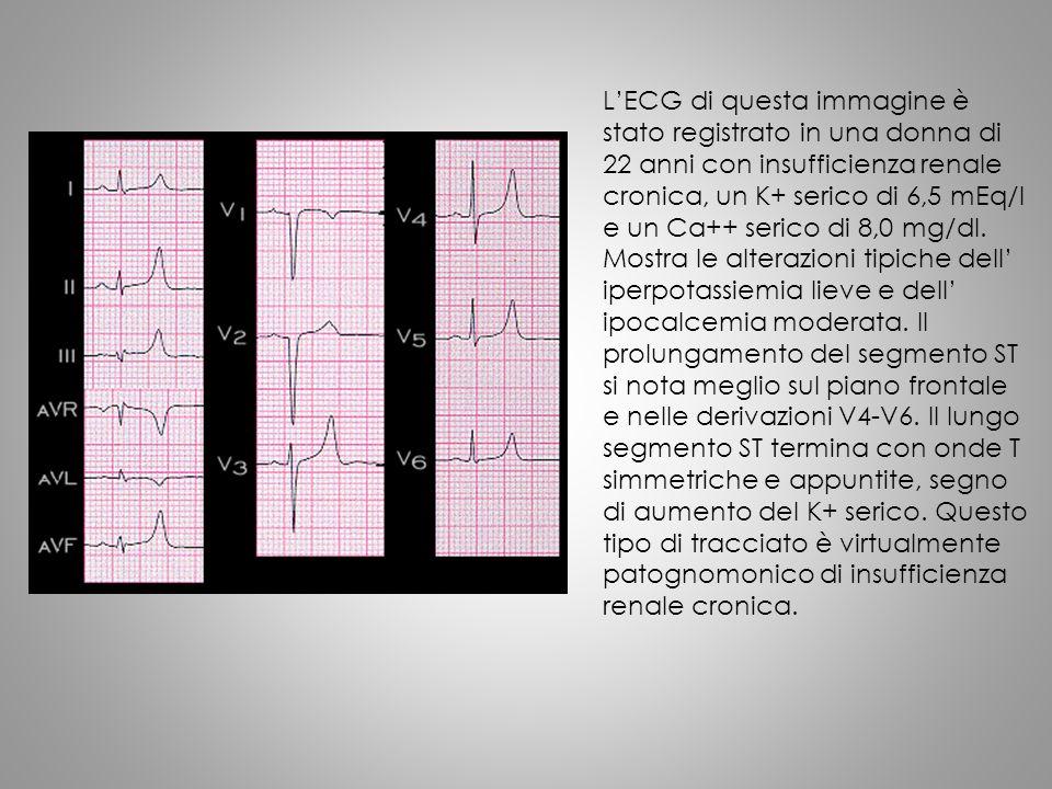 L'ECG di questa immagine è stato registrato in una donna di 22 anni con insufficienza renale cronica, un K+ serico di 6,5 mEq/l e un Ca++ serico di 8,