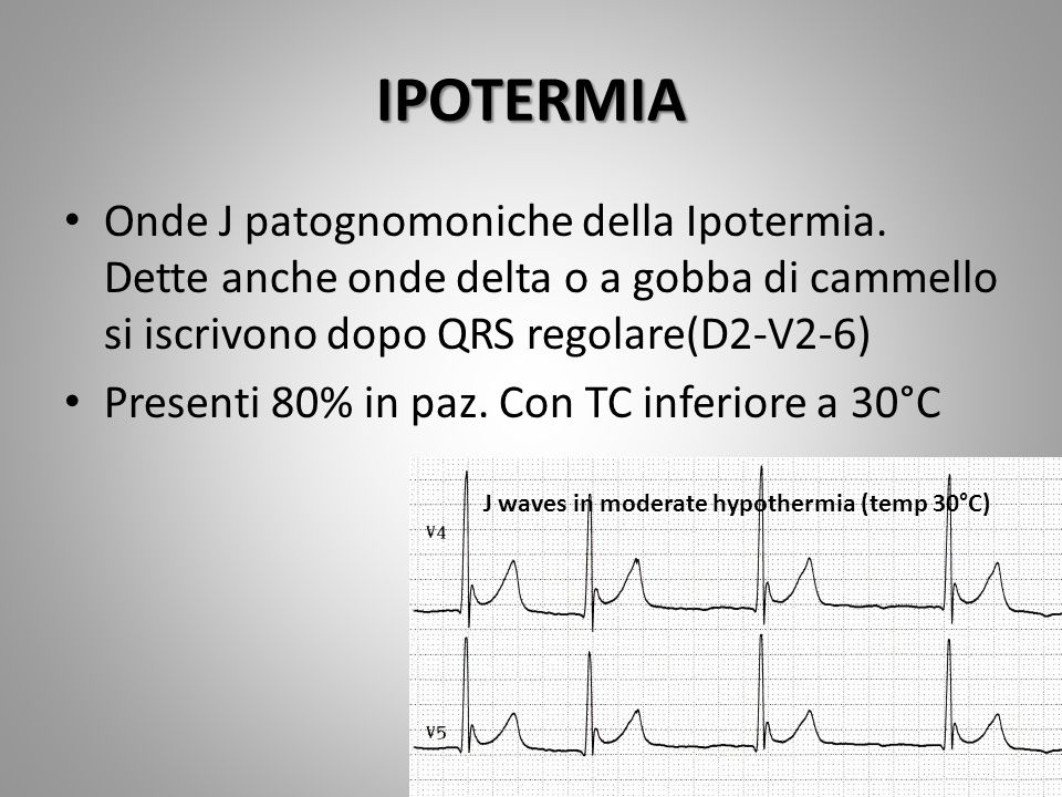 Osborn wave onde J extra deflection on the ECG at the terminal junction of the QRS complex and the beginning of the ST-segment Osborn wave onde J extra deflection on the ECG at the terminal junction of the QRS complex and the beginning of the ST-segment result from an exaggerated outward potassium current leading to repolarization abnormality.