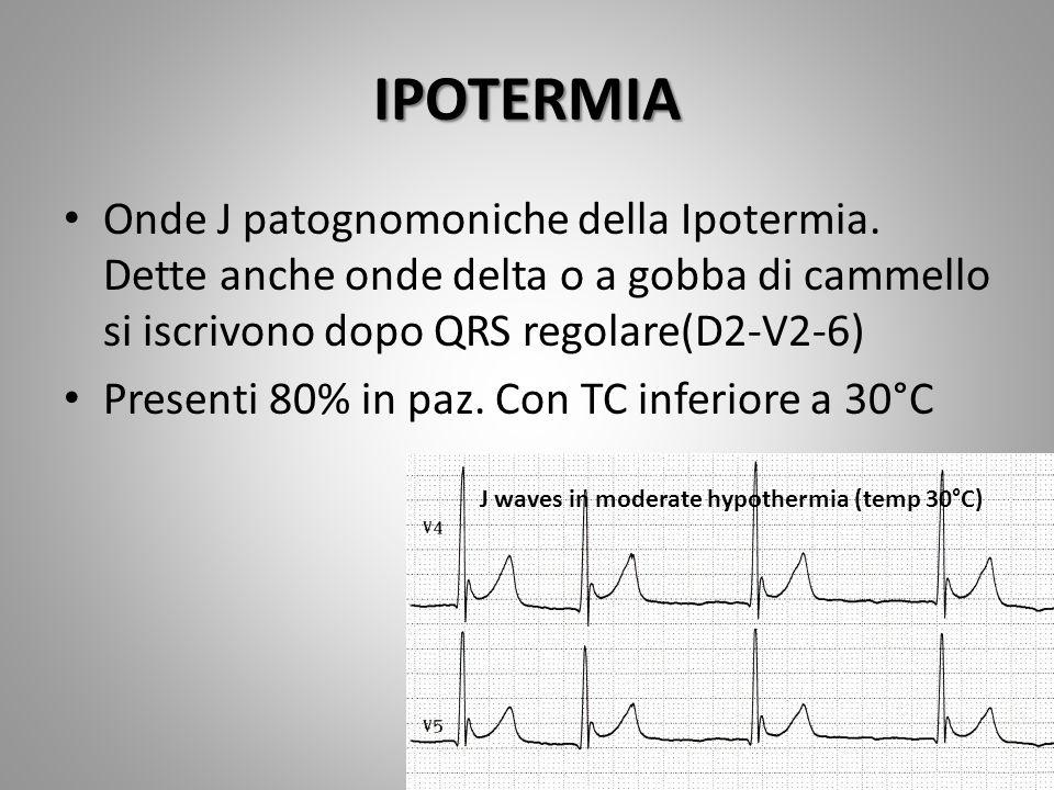 IPOTERMIA Onde J patognomoniche della Ipotermia. Dette anche onde delta o a gobba di cammello si iscrivono dopo QRS regolare(D2-V2-6) Presenti 80% in