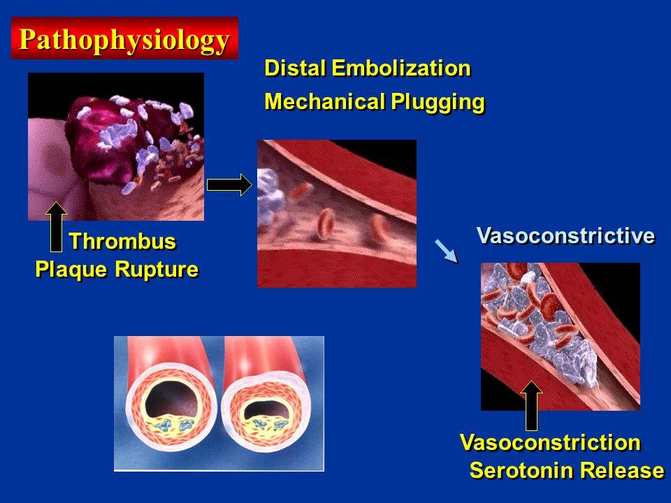 Plaque Rupture Thrombus Distal Embolization Serotonin Release Vasoconstriction Mechanical Plugging Vasoconstrictive Pathophysiology