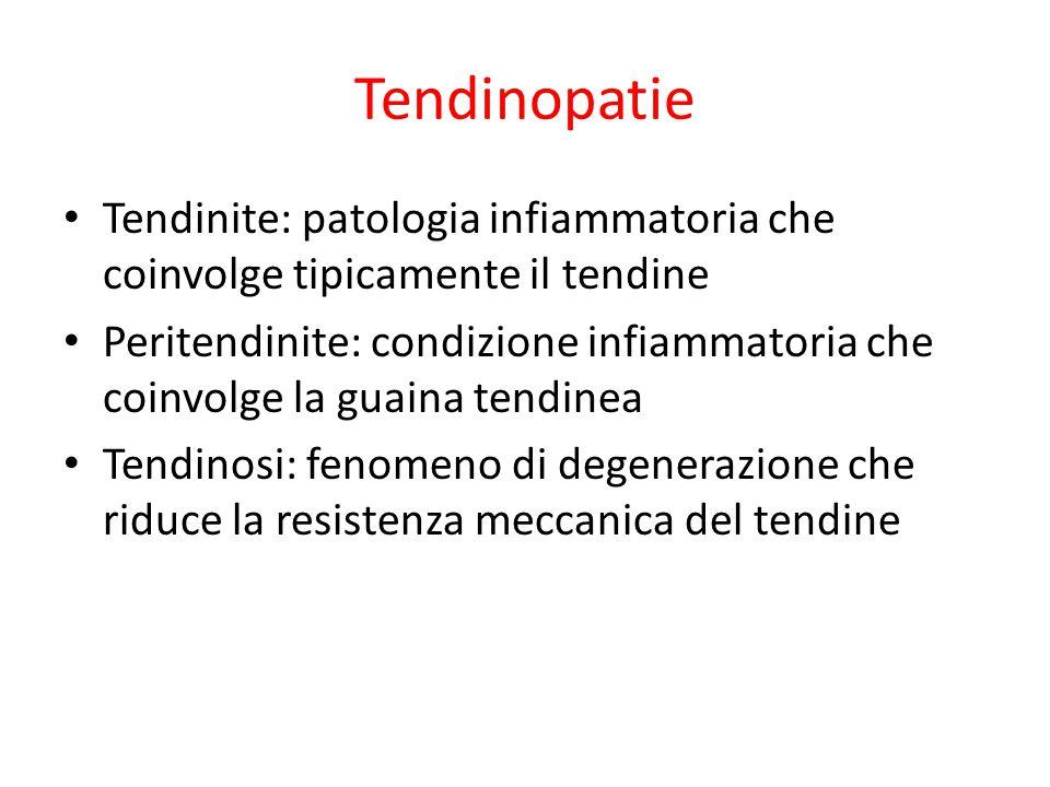 Tendinopatie Tendinite: patologia infiammatoria che coinvolge tipicamente il tendine Peritendinite: condizione infiammatoria che coinvolge la guaina t