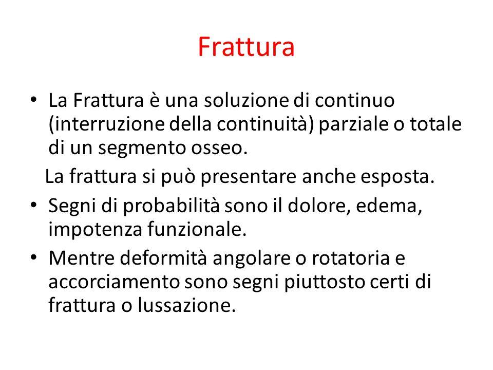 Frattura La Frattura è una soluzione di continuo (interruzione della continuità) parziale o totale di un segmento osseo. La frattura si può presentare