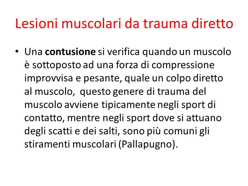 Lesioni muscolari da trauma diretto Una contusione si verifica quando un muscolo è sottoposto ad una forza di compressione improvvisa e pesante, quale