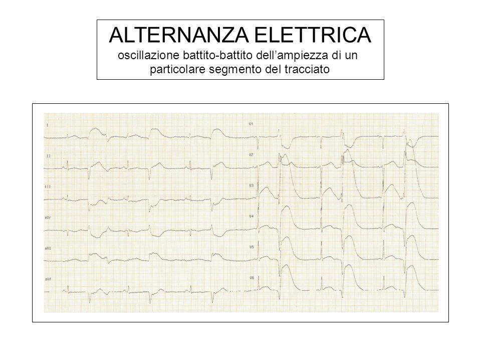 ALTERNANZA ELETTRICA oscillazione battito-battito dell'ampiezza di un particolare segmento del tracciato