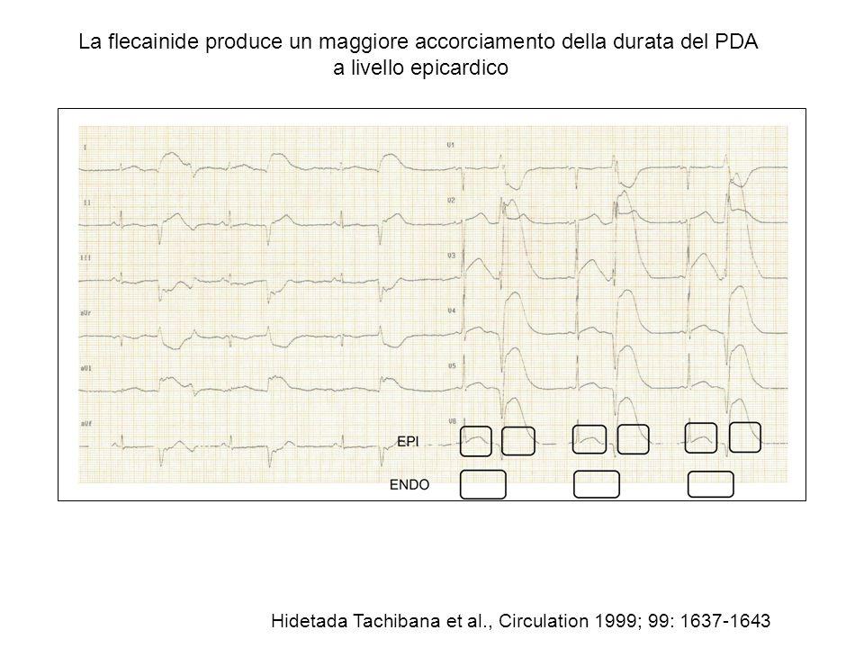 La flecainide produce un maggiore accorciamento della durata del PDA a livello epicardico Hidetada Tachibana et al., Circulation 1999; 99: 1637-1643