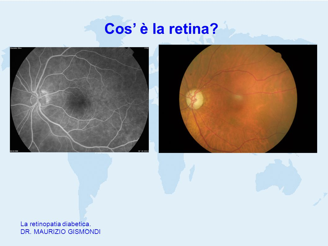 Cos' è la retina? La retinopatia diabetica. DR. MAURIZIO GISMONDI