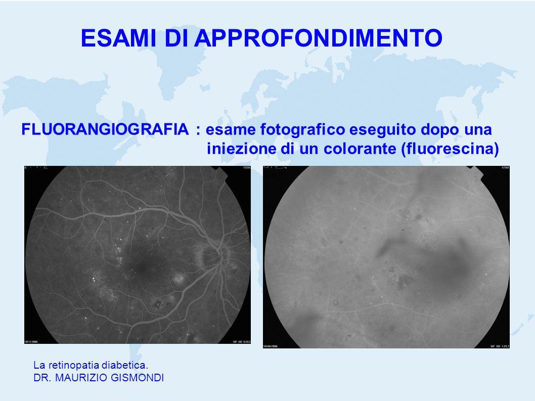 La retinopatia diabetica. DR. MAURIZIO GISMONDI FLUORANGIOGRAFIA : esame fotografico eseguito dopo una iniezione di un colorante (fluorescina) ESAMI D