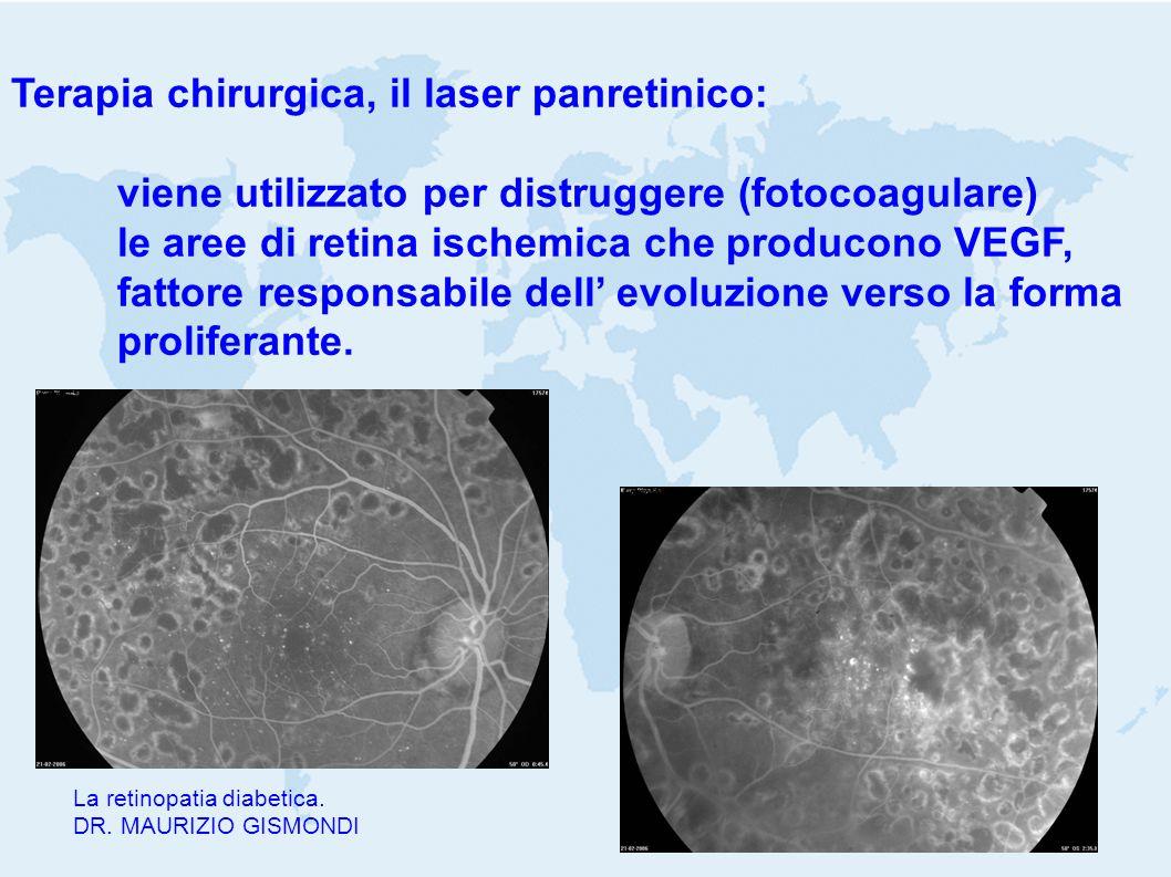 La retinopatia diabetica. DR. MAURIZIO GISMONDI Terapia chirurgica, il laser panretinico: viene utilizzato per distruggere (fotocoagulare) le aree di