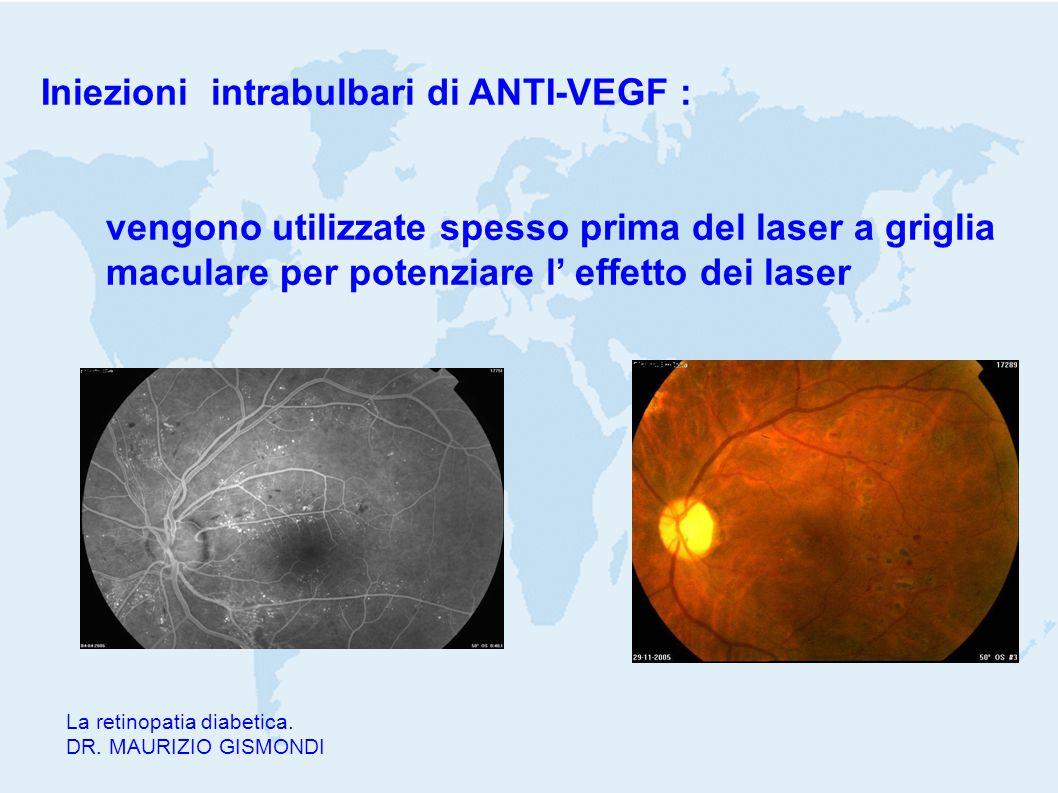 La retinopatia diabetica. DR. MAURIZIO GISMONDI Iniezioni intrabulbari di ANTI-VEGF : vengono utilizzate spesso prima del laser a griglia maculare per