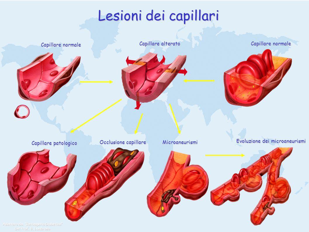 Lesioni dei capillari Capillare normale Capillare alterato Capillare patologico Occlusione capillare Microaneurismi Evoluzione dei microaneurismi Adat