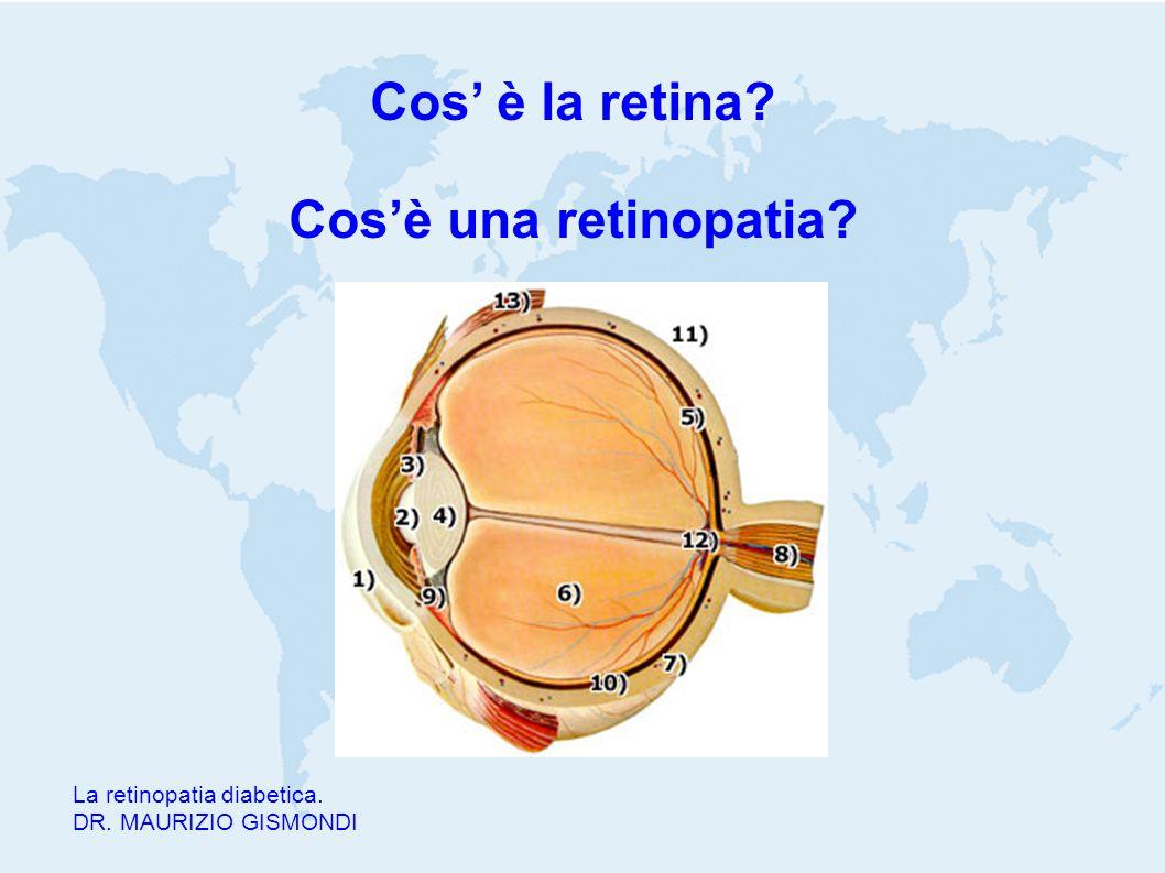 Cos' è la retina? Cos'è una retinopatia? La retinopatia diabetica. DR. MAURIZIO GISMONDI