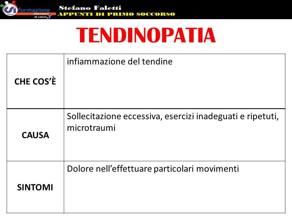 TENDINOPATIA CHE COS'È infiammazione del tendine CAUSA Sollecitazione eccessiva, esercizi inadeguati e ripetuti, microtraumi SINTOMI Dolore nell'effet