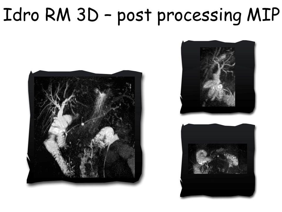 Idro RM 3D – post processing MIP