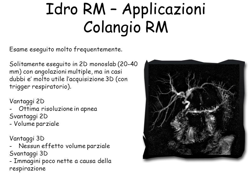 Idro RM – Applicazioni Colangio RM Esame eseguito molto frequentemente. Solitamente eseguito in 2D monoslab (20-40 mm) con angolazioni multiple, ma in