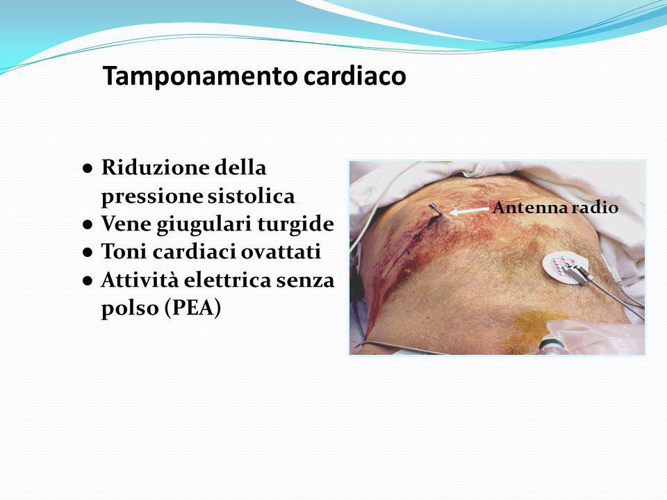 Tamponamento cardiaco ● Riduzione della pressione sistolica ● Vene giugulari turgide ● Toni cardiaci ovattati ● Attività elettrica senza polso (PEA) A