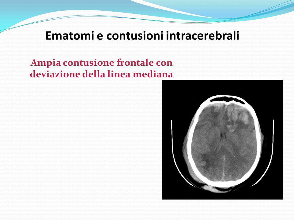 Ematomi e contusioni intracerebrali Ampia contusione frontale con deviazione della linea mediana