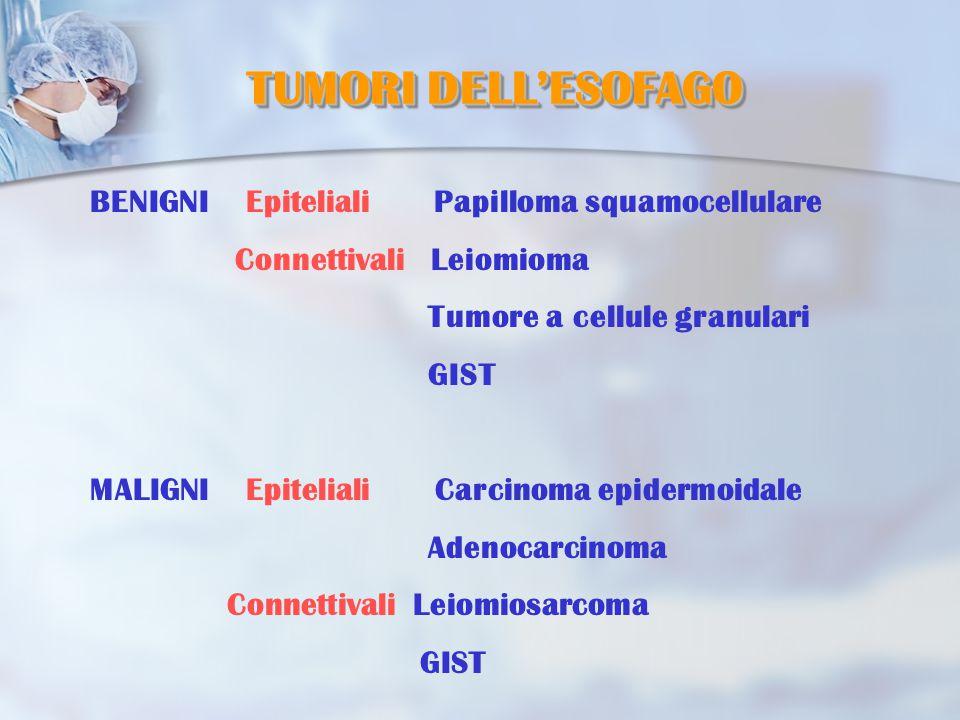 BENIGNI Epiteliali Papilloma squamocellulare Connettivali Leiomioma Tumore a cellule granulari GIST MALIGNI Epiteliali Carcinoma epidermoidale Adenocarcinoma Connettivali Leiomiosarcoma GIST TUMORI DELL'ESOFAGO