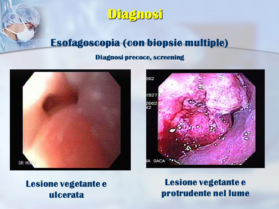 Diagnosi Esofagoscopia (con biopsie multiple) Diagnosi precoce, screening Lesione vegetante e protrudente nel lume Lesione vegetante e ulcerata