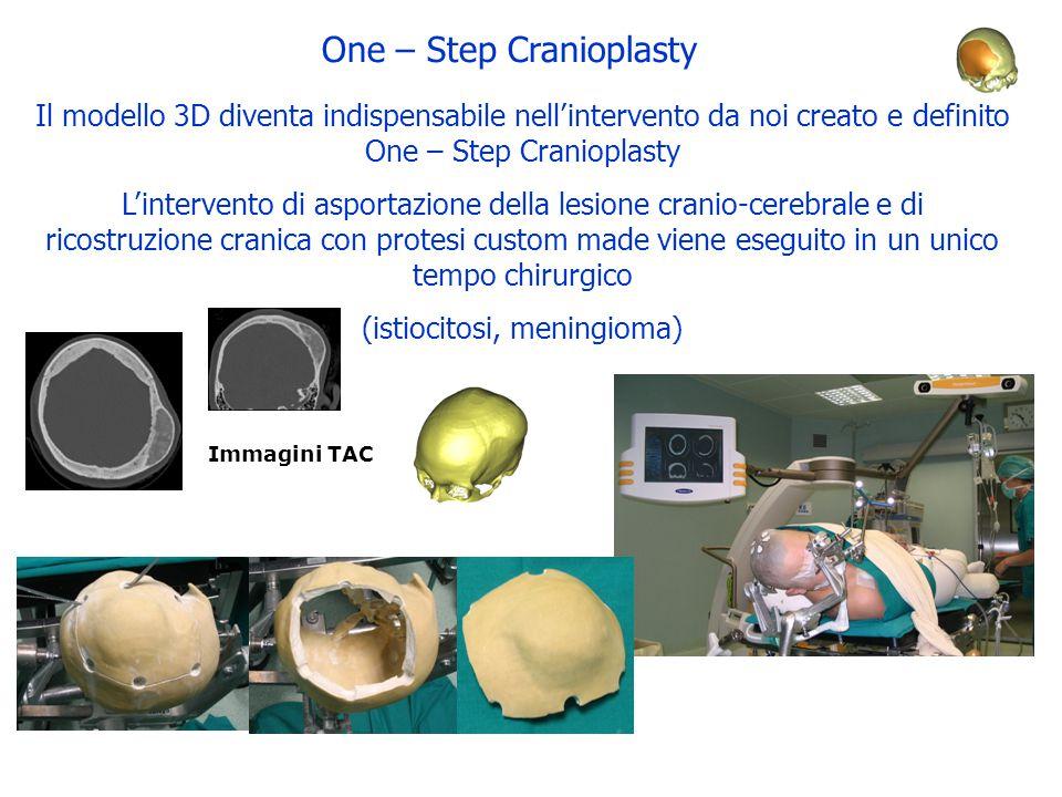 One – Step Cranioplasty Il modello 3D diventa indispensabile nell'intervento da noi creato e definito One – Step Cranioplasty L'intervento di asportaz