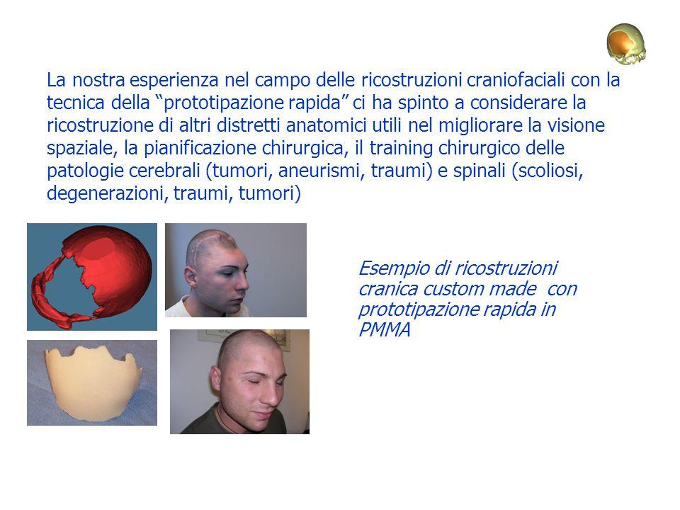 """La nostra esperienza nel campo delle ricostruzioni craniofaciali con la tecnica della """"prototipazione rapida"""" ci ha spinto a considerare la ricostruzi"""