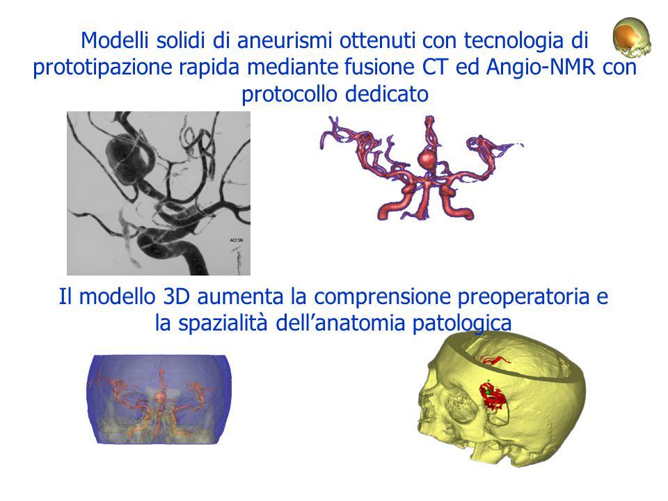Modelli solidi di aneurismi ottenuti con tecnologia di prototipazione rapida mediante fusione CT ed Angio-NMR con protocollo dedicato Il modello 3D au