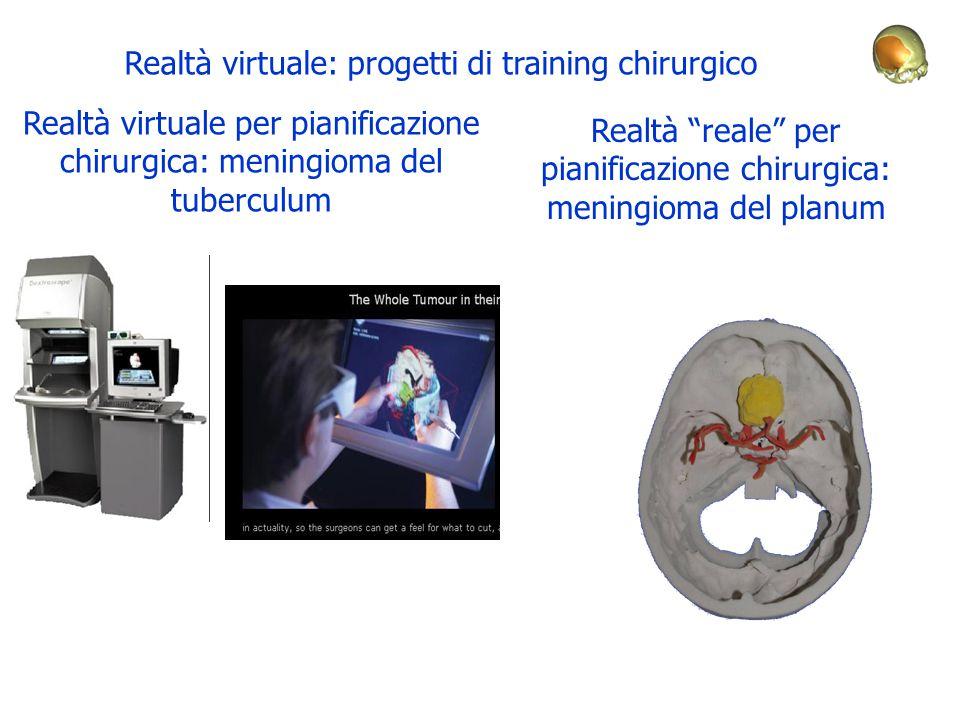 Realtà virtuale per pianificazione chirurgica: meningioma del tuberculum Realtà reale per pianificazione chirurgica: meningioma del planum Realtà virtuale: progetti di training chirurgico