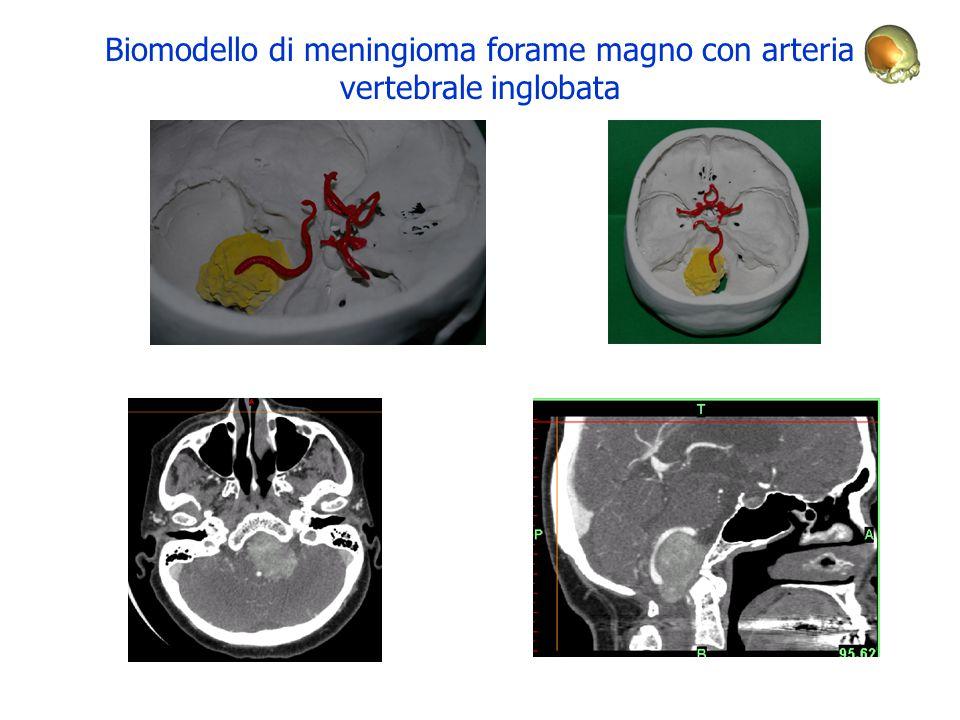 Biomodello di meningioma forame magno con arteria vertebrale inglobata