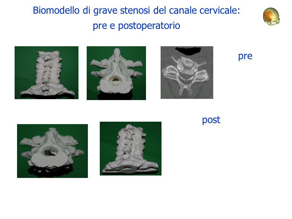 Biomodello di grave stenosi del canale cervicale: pre e postoperatorio pre post