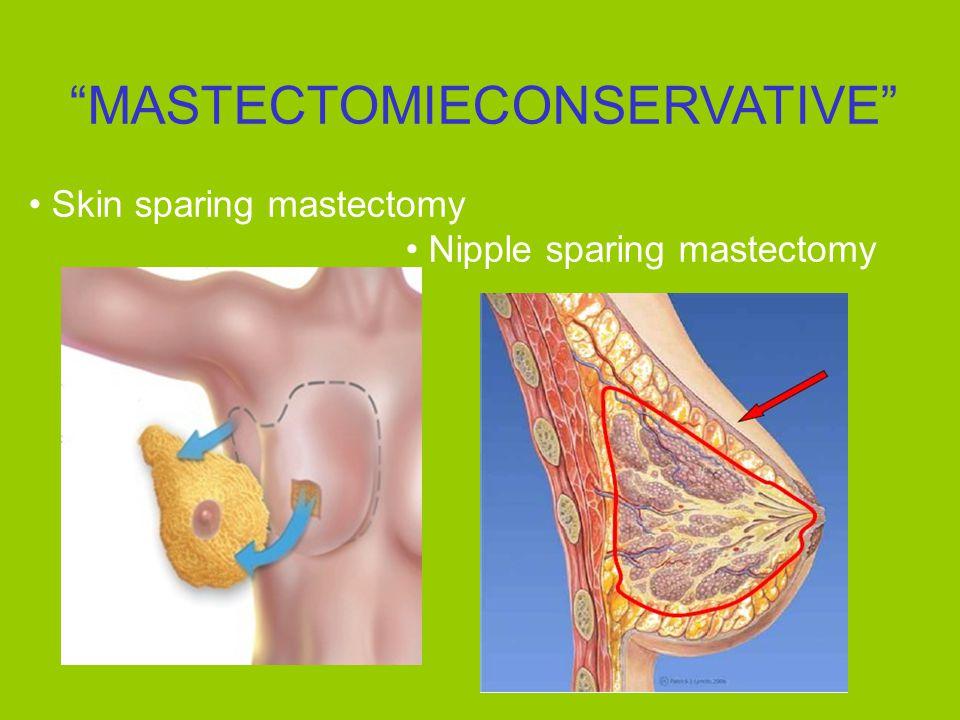 MASTECTOMIECONSERVATIVE Skin sparing mastectomy Nipple sparing mastectomy
