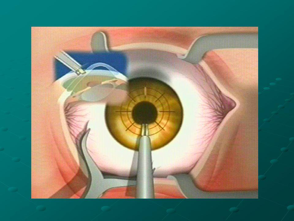 La superficie della cornea è ricoperta da un epitelio di cellule trasparenti che viene costantemente rinnovato dalle cellule staminali presenti ai margini,in una particolare zona detta limbus corneale.