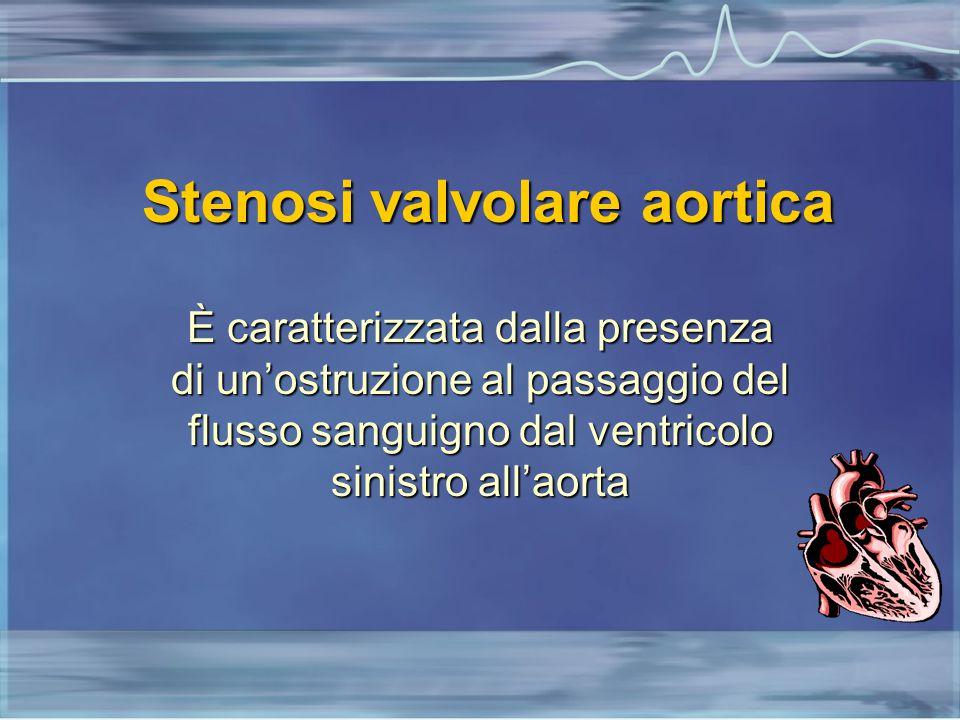 Stenosi valvolare aortica È caratterizzata dalla presenza di un'ostruzione al passaggio del flusso sanguigno dal ventricolo sinistro all'aorta