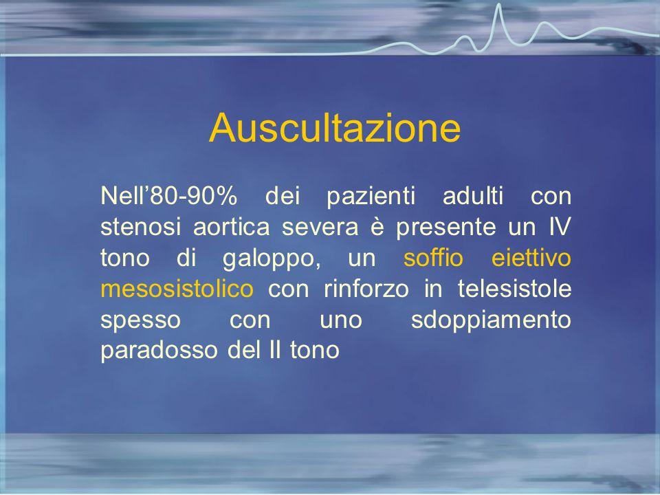 Auscultazione Nell'80-90% dei pazienti adulti con stenosi aortica severa è presente un IV tono di galoppo, un soffio eiettivo mesosistolico con rinfor
